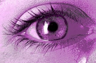 Острый приступ глаукомы фото
