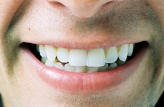 Неголливудская улыбка: 10 звезд, которые не. Журнал Cosmopolitan
