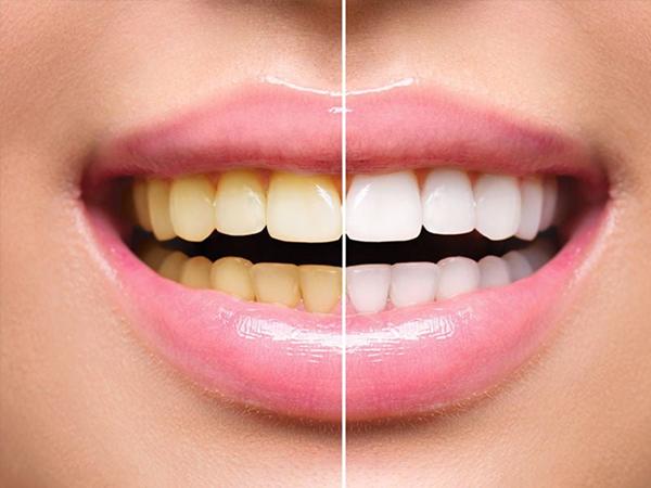 Решение проблем потемнения зубной эмали